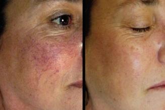 tratamientos-faciales-cuperosis
