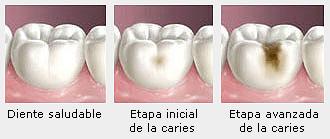 o_que_sao_caries